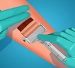 Skin Grafting Surgery